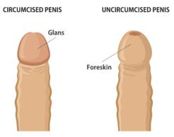 Adult Circumcision $790| Adult Circumcision Doctor